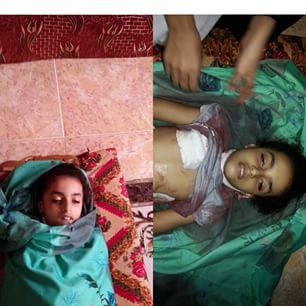 الطفلة سارة عبدالرب التي تم قنصها وهي تلعب أمام بيتها